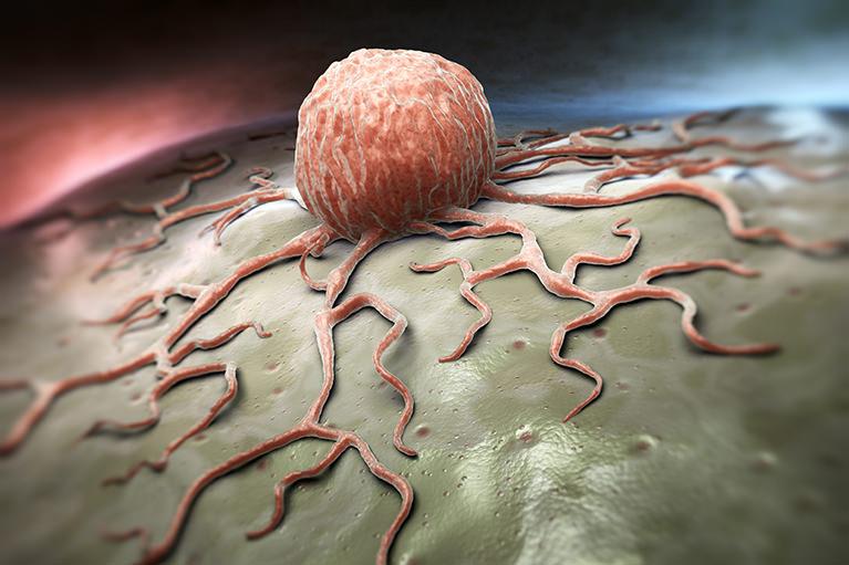 大腸ポリープができるとどうなる?